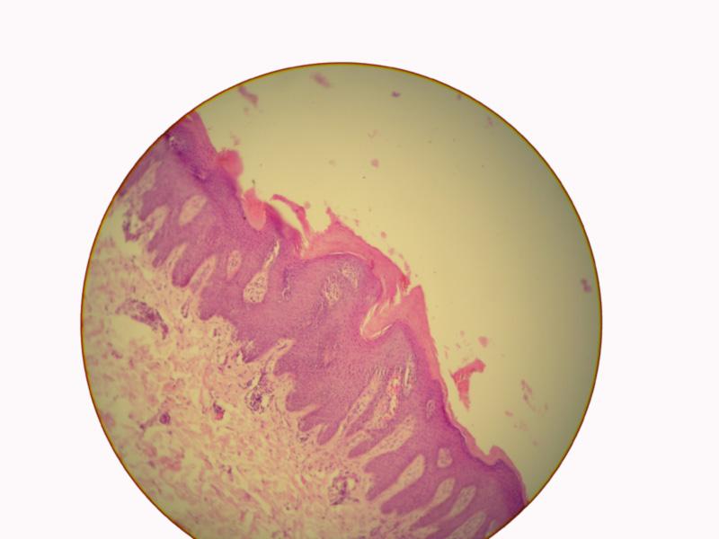 La psoriasis la probabilidad de la transmisión por herencia